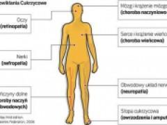 Cukrzyca Typu 2 Otylosc Zla Dieta Nie Wiedza Tak